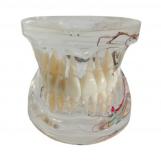 Model zęby + patologie,...